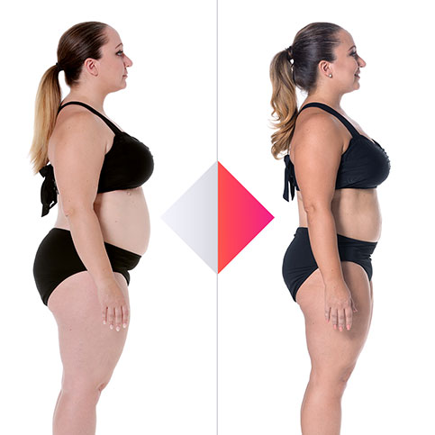 Cindy Fanara Before and After
